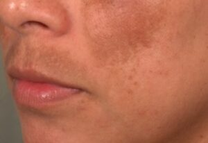 Pigmentation Removal Treatment Singapore