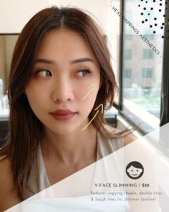 V-Face Slimming Promotions