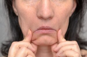 Woman Pulling Down The Sides of Chin