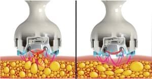 V-Face Slimming Treatment Procedure