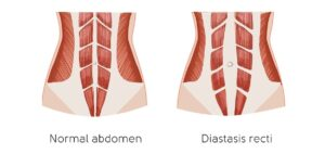 Widened Belly Muscles