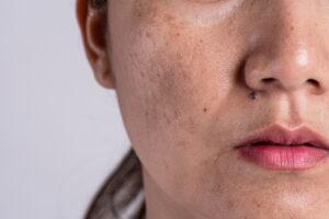Woman With Problematic Pigmentation Skin