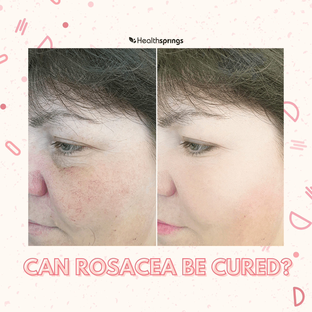 What is Rosacea? Can It Be Cured?