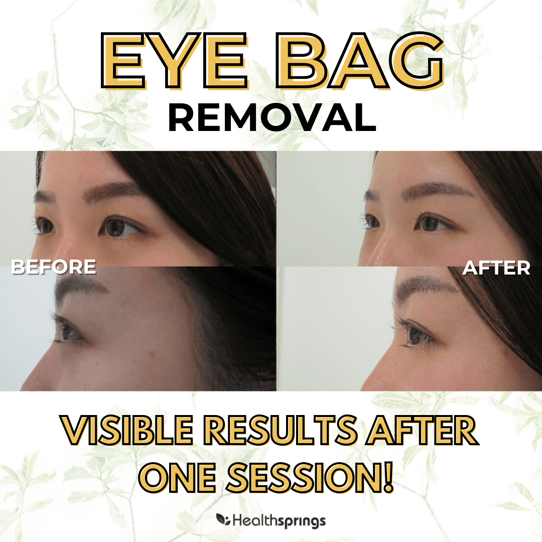 What Causes Eye Bags And How To Prevent Them?