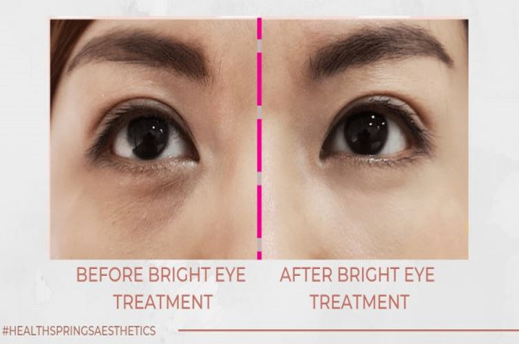 non surgical eye bag removal in Singapore